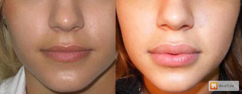 Накачена верхняя губа