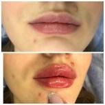 Увеличение губ, Екатеринбург