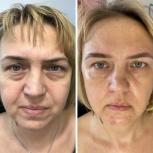 Услуги косметолога по омоложению лица, Екатеринбург