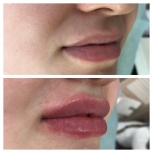 Косметолог, увеличение губ, скулы, носогубки, Екатеринбург